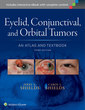 Couverture de l'ouvrage Eyelid, Conjunctival, and Orbital Tumors: An Atlas and Textbook