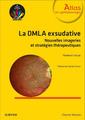 Couverture de l'ouvrage La DMLA exsudative