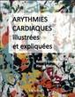Couverture de l'ouvrage Arythmies cardiaques illustrées et expliquées
