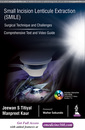 Couverture de l'ouvrage Small Incision Lenticule Extraction (SMILE) (Comprehensive Text and Video Guide)