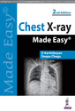 Couverture de l'ouvrage Chest X-ray Made Easy