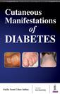 Couverture de l'ouvrage Cutaneous Manifestations of Diabetes
