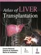 Couverture de l'ouvrage Atlas of Liver Transplantation