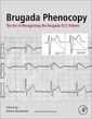 Couverture de l'ouvrage Brugada Phenocopy