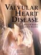 Couverture de l'ouvrage Valvular heart disease