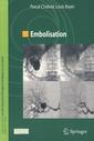 Couverture de l'ouvrage Embolisation